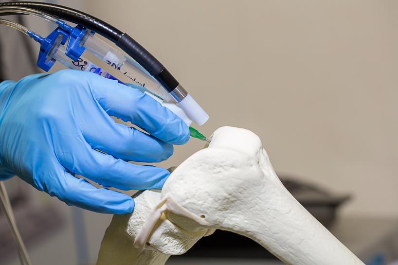 surgeons-3d-print-stem-cells-with-biopen-designboom02
